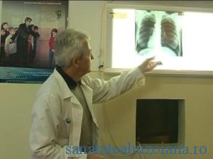 Tuberculoza , tbc plamani