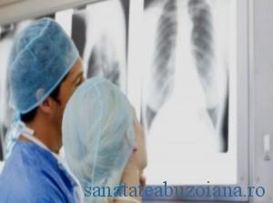 plamani - rodiologie  cancer