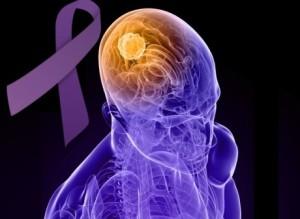 epilepsia(3)