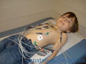 EKG copii