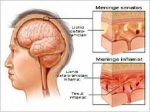 meningita