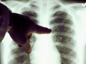 tuberculoza tbc