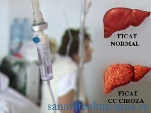 Romania: 800.000 de bolnavi cu Hepatita C